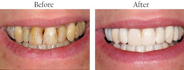 Before and After Teeth Whitening Marine Park