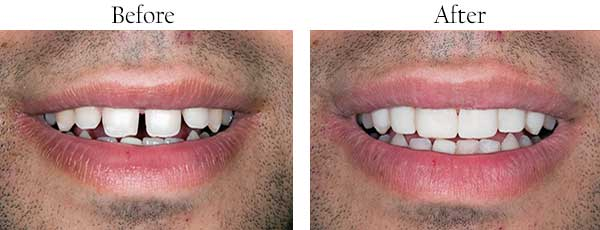 Before and After Dental Images 11229